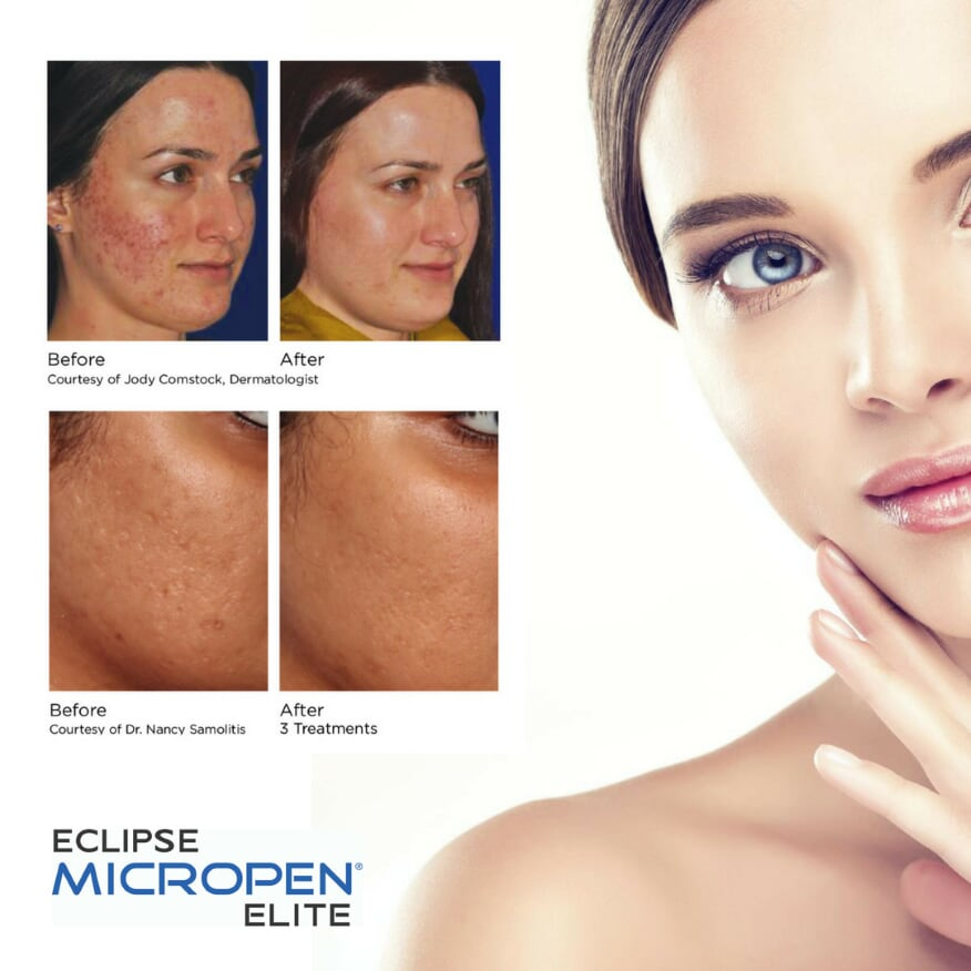 Micro-Needling – Goldberg Medical Spa