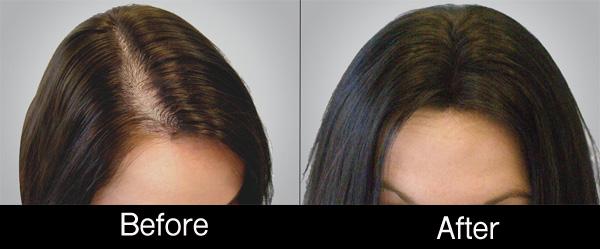 prp hair 3